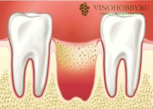 udaleniye-zuba 4
